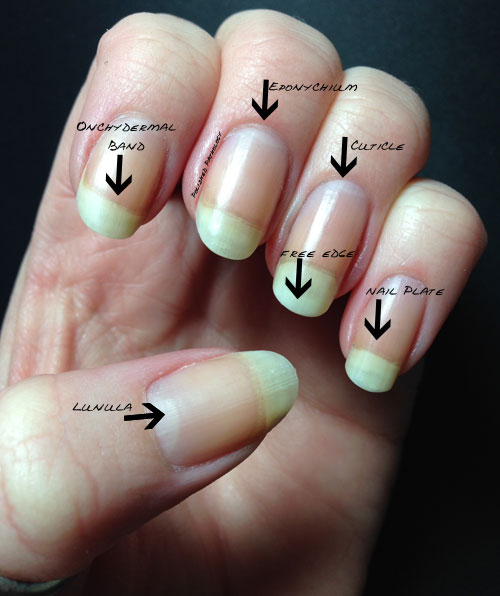 Let\'s talk about nails! - Polished Pathology